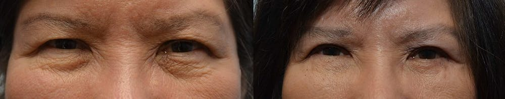 Asian Eyelid Surgery Gallery - Patient 4588567 - Image 1