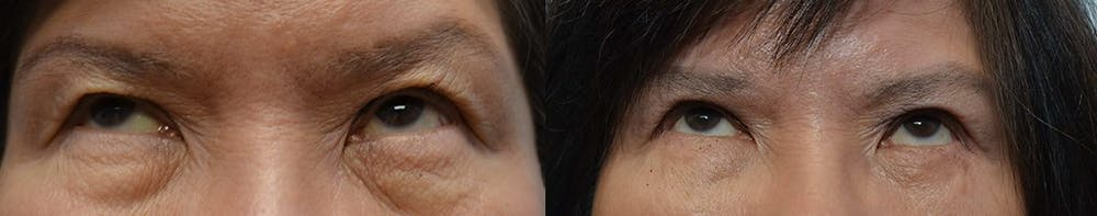 Asian Eyelid Surgery Gallery - Patient 4588567 - Image 2