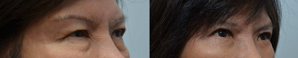 Asian Eyelid Surgery Gallery - Patient 4588567 - Image 3