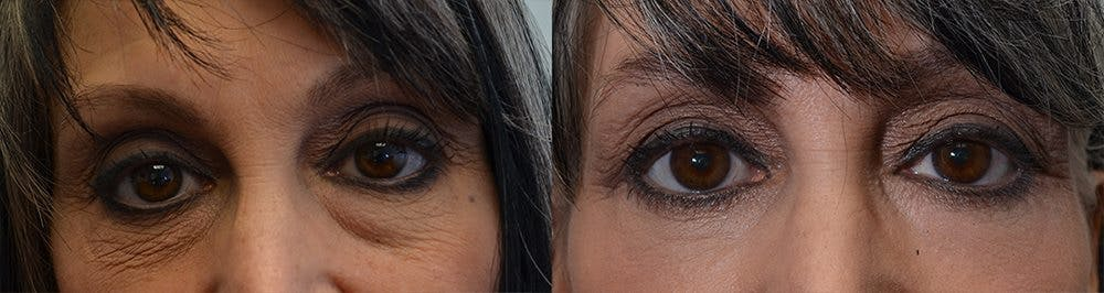 Eyelid Surgery Gallery - Patient 4588590 - Image 1