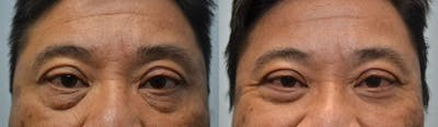 Eyelid Surgery Gallery - Patient 4588592 - Image 10