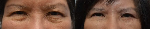 Eyelid Surgery Gallery - Patient 4588594 - Image 1