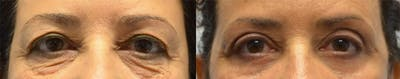 Eyelid Surgery Gallery - Patient 4588596 - Image 13