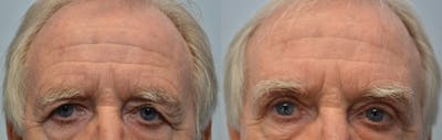 Eyelid Surgery Gallery - Patient 4588597 - Image 14