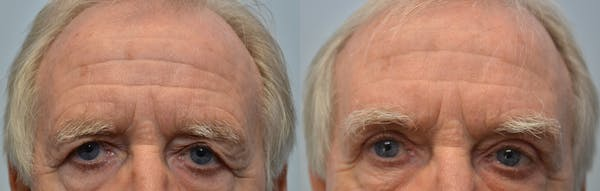 Eyelid Surgery Gallery - Patient 4588597 - Image 1
