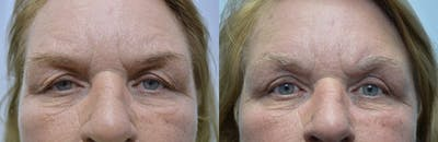 Eyelid Surgery Gallery - Patient 4588601 - Image 1