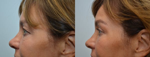 Eyelid Surgery Gallery - Patient 4588602 - Image 1