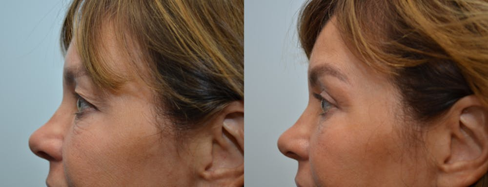 Eyelid Surgery Gallery - Patient 4588602 - Image 3