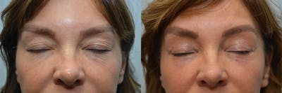Eyelid Surgery Gallery - Patient 4588602 - Image 2