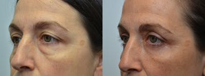 Eyelid Surgery Gallery - Patient 4588604 - Image 19