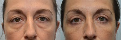 Eyelid Surgery Gallery - Patient 4588604 - Image 2