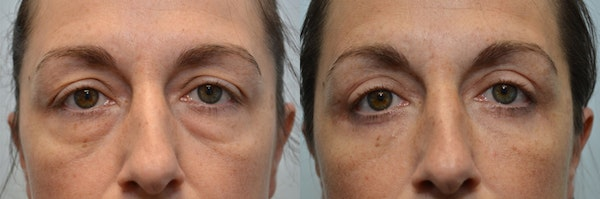 Eyelid Surgery Gallery - Patient 4588604 - Image 1