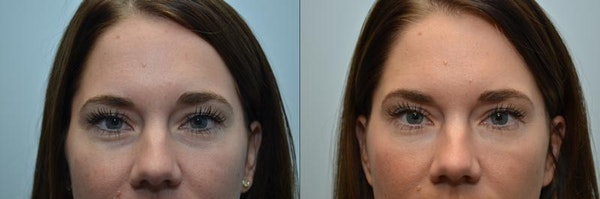 Under Eye Rejuvenation Gallery - Patient 4588628 - Image 1