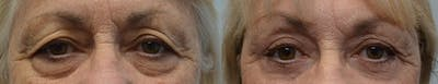 Brow Lift (Forehead Lift) Gallery - Patient 4588635 - Image 1
