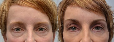 Brow Lift (Forehead Lift) Gallery - Patient 4588636 - Image 1