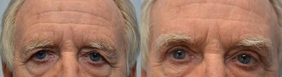 Brow Lift (Forehead Lift) Gallery - Patient 4588638 - Image 1