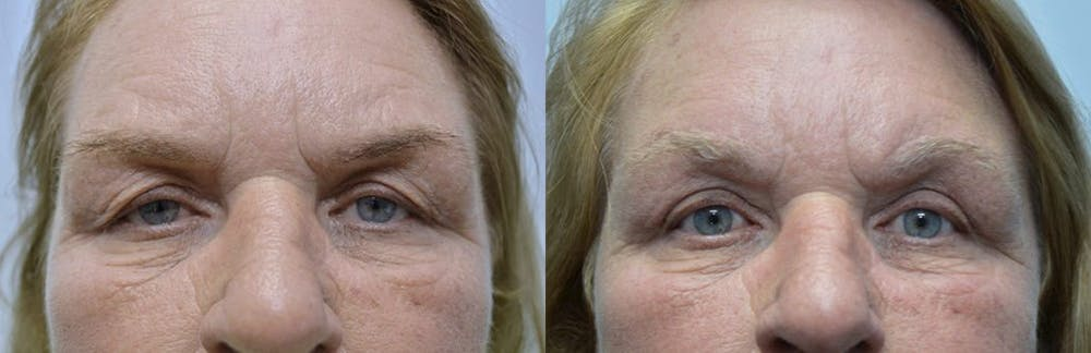 Brow Lift (Forehead Lift) Gallery - Patient 4588639 - Image 1