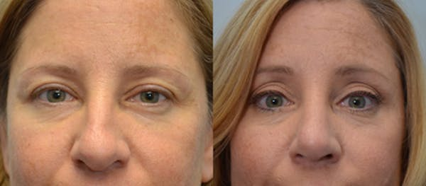 Brow Lift (Forehead Lift) Gallery - Patient 4588641 - Image 1