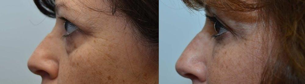 Facial Revolumizing (Fat Transfer) Gallery - Patient 4588773 - Image 2