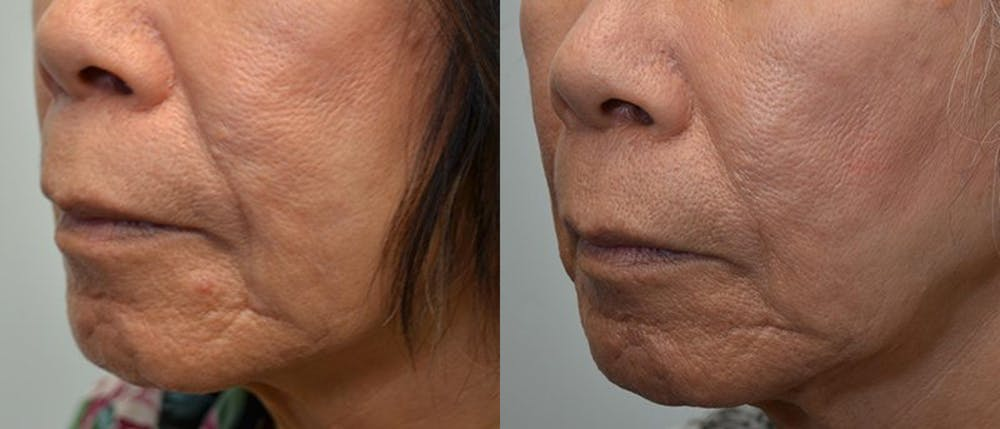 Facial Revolumizing (Fat Transfer) Gallery - Patient 4588774 - Image 3