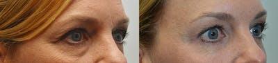 Facial Revolumizing (Fat Transfer) Gallery - Patient 4588777 - Image 1