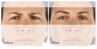 Botox / Xeomin Gallery - Patient 4588776 - Image 1