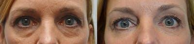 Facial Revolumizing (Fat Transfer) Gallery - Patient 4588777 - Image 2