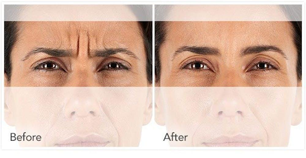 Botox / Xeomin Gallery - Patient 4588778 - Image 1