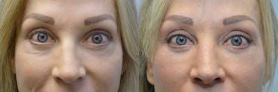 Facial Revolumizing (Fat Transfer) Gallery - Patient 4588786 - Image 1