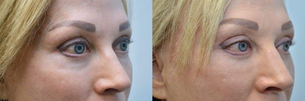 Facial Revolumizing (Fat Transfer) Gallery - Patient 4588786 - Image 2