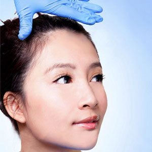 asian-eyelid-surgery-in-westake-village-ca