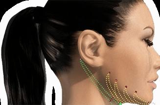 nonsurgical facial rejuvenations