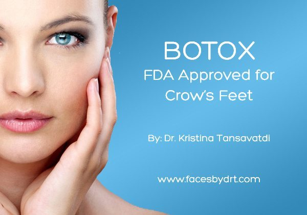 BOTOX: FDA Approved for Crow's Feet. Tansavatdi Cosmetic & Reconstructive Surgery 696 Hampshire Road, Suite 170 Westlake Village, CA 91361 (805) 715-4996