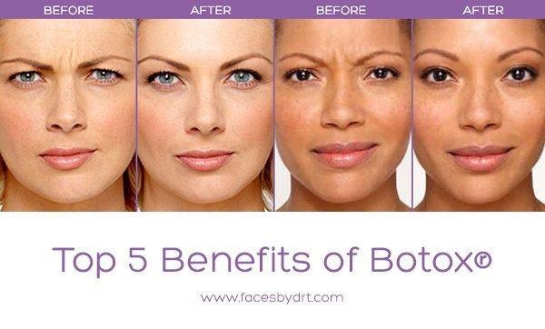 Top 5 Benefits of Botox® - Dr. Kristina Tansavatdi