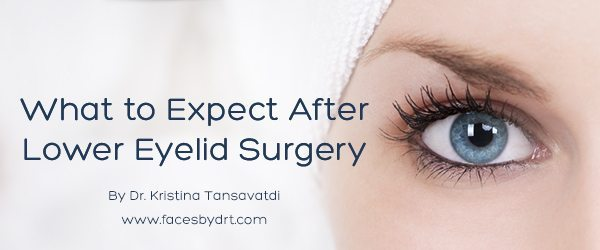 What to Expect After Lower Eyelid Surgery
