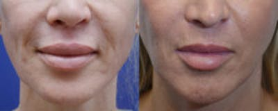 Non-Surgical Soft Tissue Fillers Gallery - Patient 4594095 - Image 1