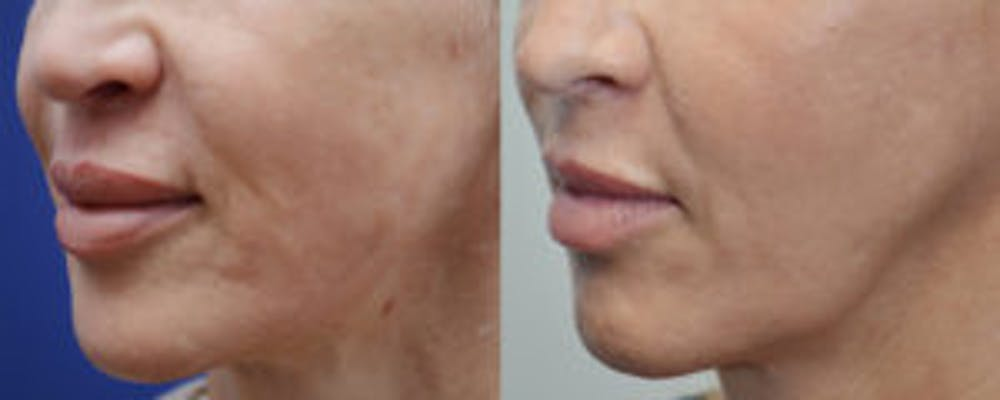 Non-Surgical Soft Tissue Fillers Gallery - Patient 4594095 - Image 2
