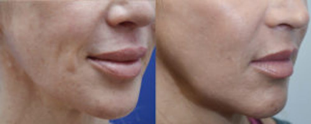 Non-Surgical Soft Tissue Fillers Gallery - Patient 4594095 - Image 3