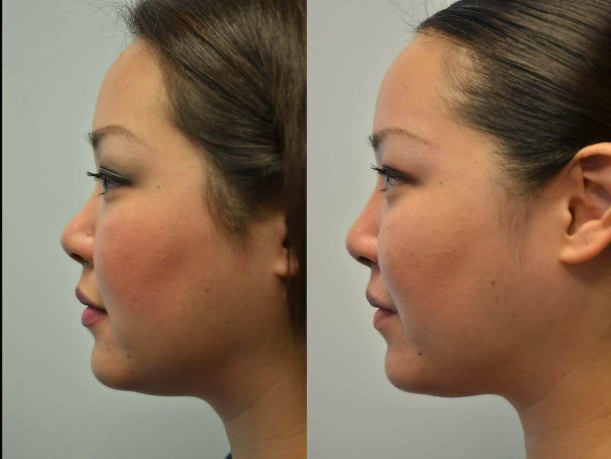 Non-Surgical Soft Tissue Fillers Gallery - Patient 4594098 - Image 1