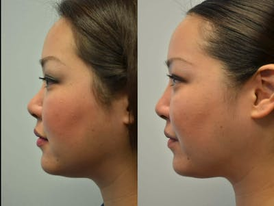 Non-Surgical Soft Tissue Fillers Gallery - Patient 4594098 - Image 3