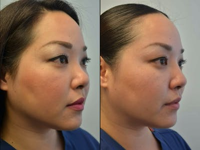 Non-Surgical Soft Tissue Fillers Gallery - Patient 4594098 - Image 2