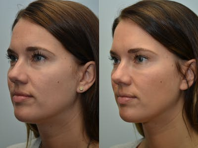 Non-Surgical Soft Tissue Fillers Gallery - Patient 4594103 - Image 1