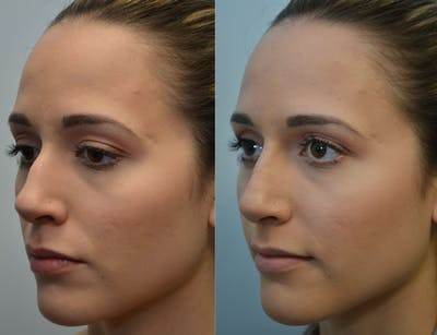 Non-Surgical Soft Tissue Fillers Gallery - Patient 4594105 - Image 7