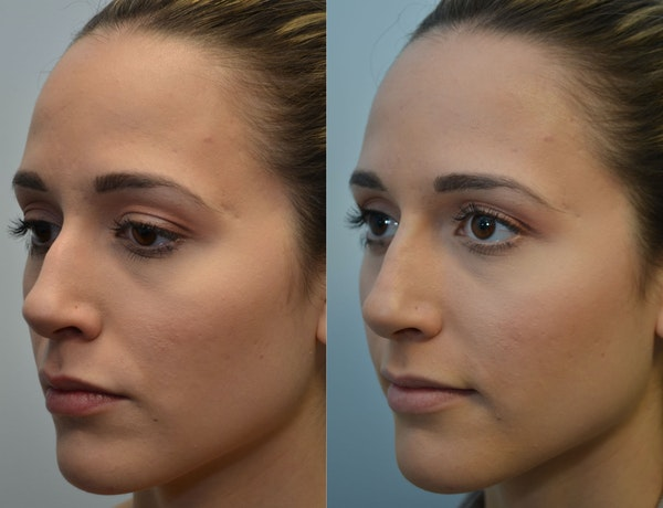 Non-Surgical Soft Tissue Fillers Gallery - Patient 4594105 - Image 1