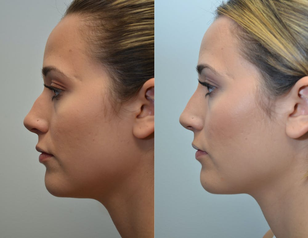 Non-Surgical Soft Tissue Fillers Gallery - Patient 4594105 - Image 2
