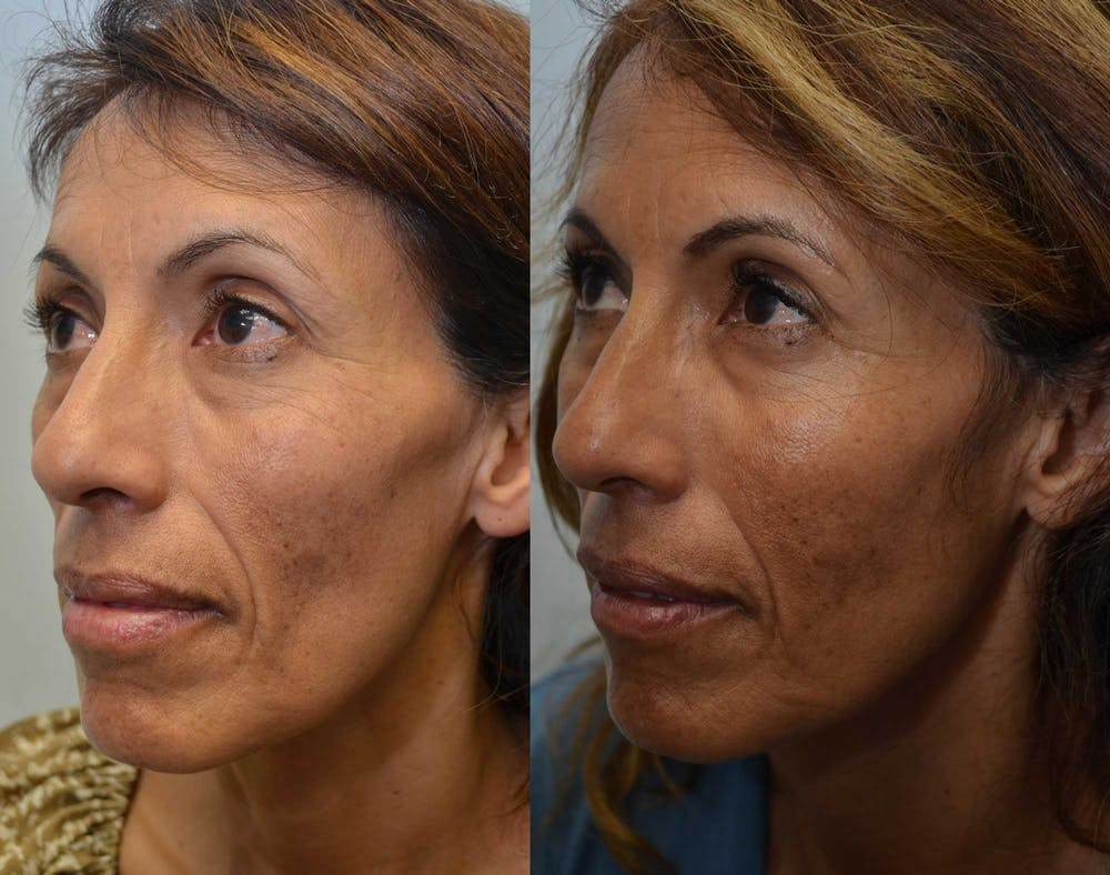 Non-Surgical Soft Tissue Fillers Gallery - Patient 4630996 - Image 2