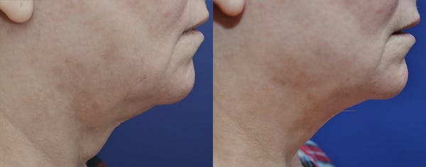 Facetite™: Non-Surgical Facelift Gallery - Patient 4588395 - Image 1