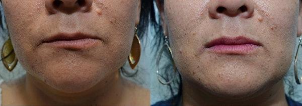 Lip Enhancement Gallery - Patient 4588509 - Image 1
