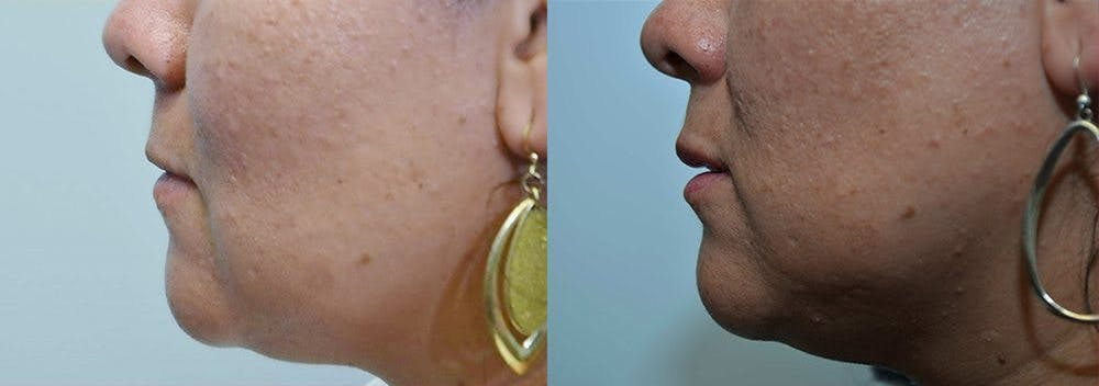 Lip Enhancement Gallery - Patient 4588509 - Image 2
