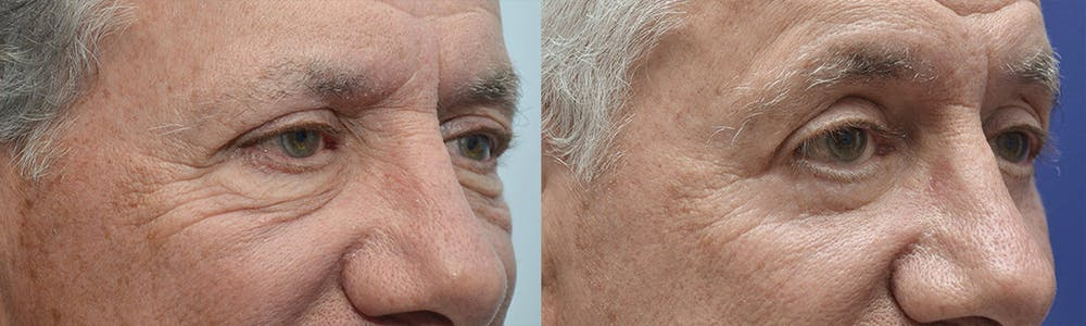 Eyelid Surgery Gallery - Patient 4588566 - Image 2